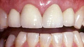 anterior-crowns-after-4