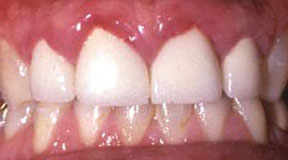 anterior-crowns-before-4