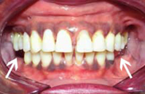 denture-01-before