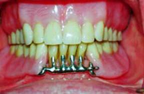 denture-03-after