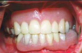 denture-04-after