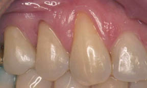 fillings-09-after