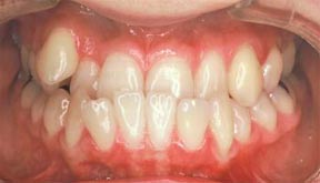 ortho_01_before