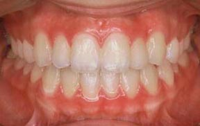 ortho_02_after
