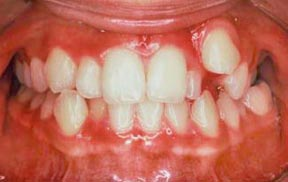 ortho_02_before