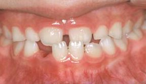 ortho_04_before