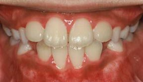 ortho_05_after