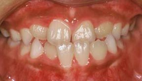 ortho_05_before