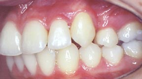 ortho_06_after