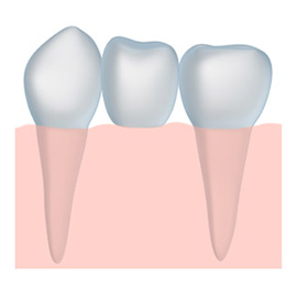 tooth crown dentistry with a Fresno dentist near Madera