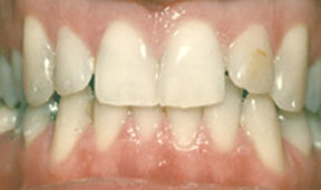 veneers_09_before