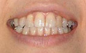 whitening_02_before