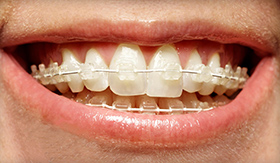 six month smiles clear braces with a Clovis dentist in Fresno CA