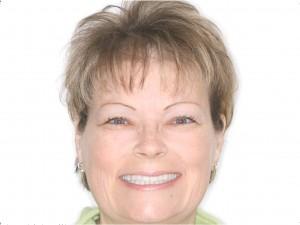 dental implants procedure Clovis and Madera