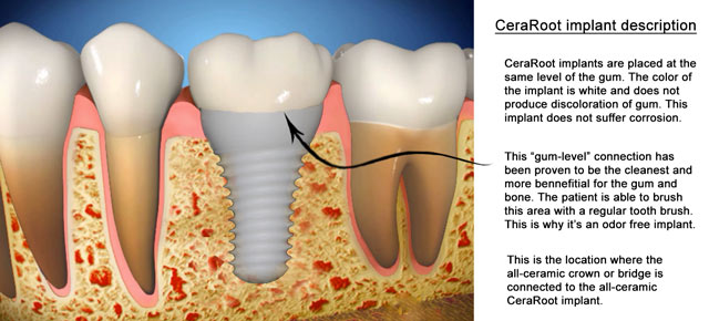 ceramic-implant-description-drawing