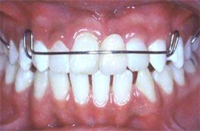 dentures05after