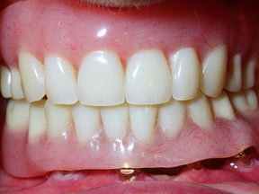 implant-03-after