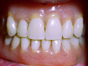 implant-04-after