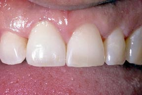 implant_00_after