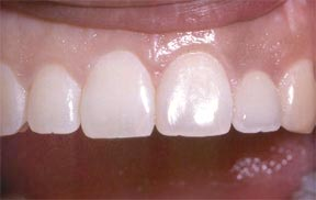 implant_01_after
