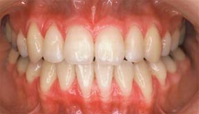 ortho_01_after