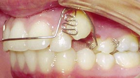 ortho_06_before