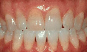 veneers_00_before