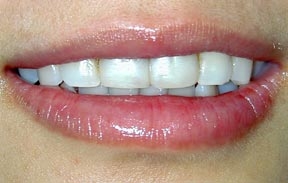 veneers_02_before