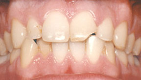 veneers_04_before