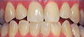 whitening_00_before