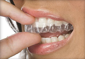 how to get straight teeth without braces wikihow