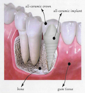 ceramic dental implants Clovis and Madera